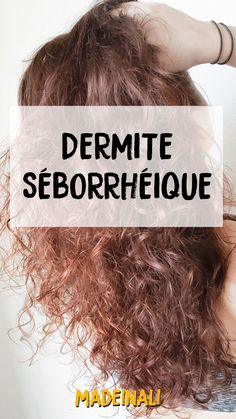 Caring naturally seborrheic dermatitis of the scalp - madeinali Natural Health Tips, Natural Skin Care, Natural Hair, Best Beauty Tips, Beauty Hacks, Seborrhoische Dermatitis, Aloe Vera, Overnight Hairstyles, Nail Care Tips