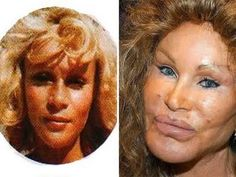 jocelyn wildenstein OMG WTF Did You Do to Your Face?!: Celebrity Plastic Surgery Gone Wrong