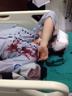 Hà Nội: Xác minh vụ nữ sinh nhập viện do bị bạn đánh vào đầu