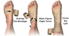 How to correctly wrap an ankle with an elastic bandage. EVERY dancer needs to know this!