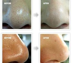 Get Rid of Blackheads Overnight Fast and Naturally (Nose/Face)
