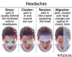 Cervicogenic Headaches