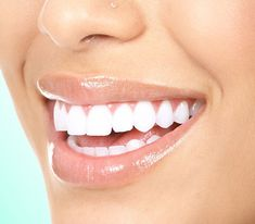 Our Waterbury CT 06708 smile makeover dentist is pleased to offer top quality comsetic dentistry services. Our comsetic dental treatments include: white dental fillings, porcelain dental veneers, dental crowns and professional teeth whitening services. Teeth Whitening Remedies, Natural Teeth Whitening, Teeth Implants, Dental Implants, Dental Surgery, Snap On Smile, Dental Fillings, Beautiful Teeth, Perfect Teeth