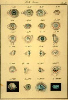 """""""Morbi corneae."""" From the book """"Klinische Darstellungen der Krankheiten des Menschlichen Auges"""" (Clinical representations of the diseases and malformations of the human eye), by Dr. Friedrich A. von Ammon, 1838"""