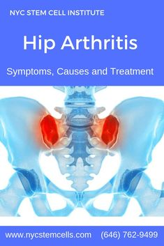 Hip arthritis is a common condition that causes problems with the ball-and-socket joint at the junction of the pelvis and lower extremity. NYC Stem Cell Institute provides the effective Regenerative Medicine Stem Cell Therapy for Hip Arthritis. Hip Arthritis, Rheumatoid Arthritis Symptoms, Osteoarthritis Hip, Alternative Health, Alternative Medicine, Holistic Care, Stem Cell Therapy, Regenerative Medicine