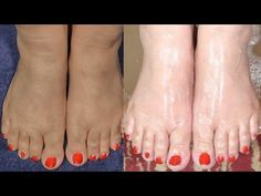 Feet Whitening Pedicure At Home By Simple Beauty Secrets - YouTube