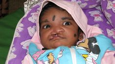 Charity treating facial deformities