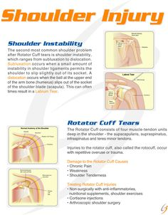 Me with a rotatator cuff injury:( terrible timing  #dancerprobs #shoulderpain