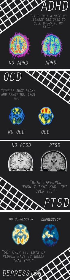 Brains with mental disorders. Mental illnesses are real, and people need to acknowledge that.