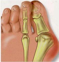 2 Pcs Feet Care Pedicure Soft Gel Valgus Pro Hallux Valgus Sosu Valgus Pro Health Monitors For Foot Callus MFO-02