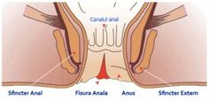 Symptoms of anal fissure are: pain, bleeding and anal itching. These symptoms resemble those of hemorrhoids. Anal fissure appears as an ulcer of the skin as you can see in the picture. Ulcers occur...
