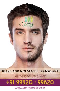 """BEARD AND MOUSTACHE TRANSPLANT   """"Kill the boy, Be a Man""""   Beard and moustache brings out the Manly looks in you. Beards or moustache can sometimes be patchy which makes you envious of others with the trendy looks. Increase your standards with beard and moustache transplant at Spring Med Spa.   Visit SPRING MED SPA, Madipakkam. Contact: 09952099620   #Springmedspa #Beardtransplant #Moustachetransplant Beard Transplant, Man Beard, Be A Man, Moustache, Bearded Men, Beards, That Look, Spa, Spring"""