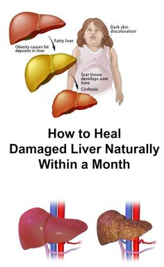 How to Heal Damaged Liver Naturally Within a Month