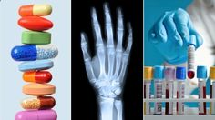 10 Questions to Ask Your Doctor About Rheumatoid Arthritis | Everyday Health