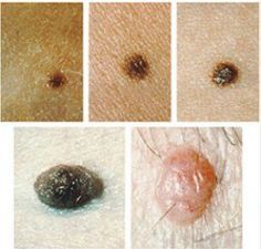 17 Simple Ways To Get Rid Of Moles On Any Part Of The Body