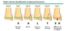 salter harris fracture - Google Search