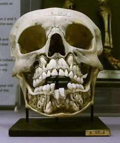 """"""" of my 40 FAVOURITE HISTORY OBJECTS: Child's skull century) showing deciduous teeth (baby/primary teeth) & permanent teeth located above. Note the position of the canines directly under the eye socket (hence the term """"eye teeth""""). This skull is from Aliens And Ufos, Ancient Aliens, Ancient History, European History, American History, Nephilim Giants, Giant Skeleton, Arte Tribal, Strange History"""