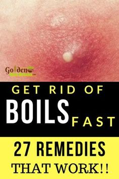 27 Home Remedies For Boils That Really Work