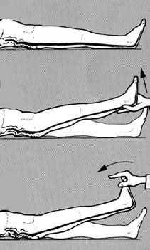 piriformis syndrome diagnosis using straight leg raise test to rule out sciatica