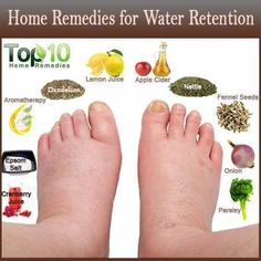 Check Out these Top 10 remedies for water retention. Sometimes all you need is a little natural healing to get your body back into balance. Nutrition is everything! Natural Health Remedies, Natural Cures, Natural Healing, Herbal Remedies, Holistic Remedies, Natural Diuretic, Natural Detox, Health And Beauty Tips, Health Tips