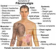 How To Diagnose Fibromyalgia - not fun to live with