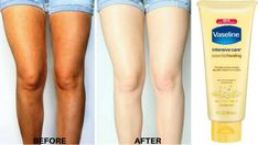 USe body lotion this way to get fairer skin like never before