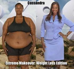 Extreme Makeover: Weight Loss Edition - Cassandra lost 175 pounds. More info and video: www.blackweightlosssuccess.com/extreme-makeover-weight-loss-edition-cassandra-dumass-story/