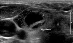 A complex, mostly cystic thyroid nodule in the right thyroid lobe. These complex nodules have a lower risk of malignancy.