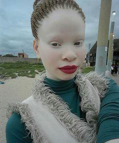 Black is beautiful. Black Girl Makeup, Girls Makeup, Albino African, Beautiful African Women, Albinism, Black Pigment, African Girl, Crazy Hair, Interesting Faces