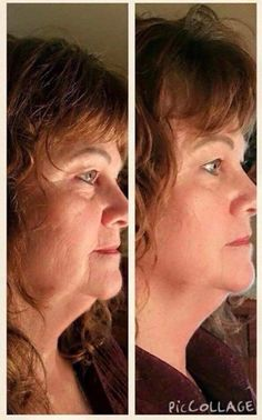 How are your jowls!  Try Nerium.  Vvictor.nerium.com