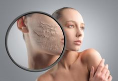 Destroy You Moles, Warts, Blackheads, Skin Tags & Age Spots Completely Naturally - Think Healthy Social Marketing, Makeup Tips For Dry Skin, Dry Skin On Feet, Dry Skin Remedies, Skin Tag Removal, Cream For Dry Skin, Oily Skin Care, The Help, Flaky Skin