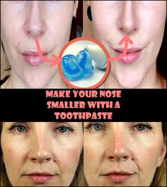 There are many ladies who are unhappy with the shape and size of their nose. What solution can be found to shrink it, they can not afford expensive surgery? 800