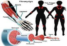 Alternative Remedies for Fibromyalgia - http://conservativeread.com/alternative-remedies-for-fibromyalgia/