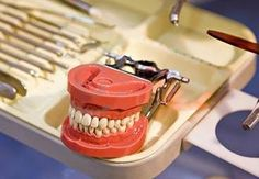 Cool Dental Implants  Top images found online