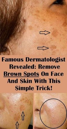Numerous people find the age spots on their skin a huge problem, as they lower their self-esteem and look unattractive. hacks Famous Dermatologist Revealed: Remove Brown Spots On Face And Skin With This Simple Trick! Health Tips For Women, Health And Beauty, Healthy Beauty, How To Get Rid, How To Remove, Brown Spots On Hands, Dark Spots, Facial Brown Spots, Age Spots On Face