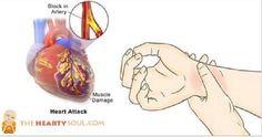 80% dos ataques cardíacos podem ser evitados com estes 8 segredos da medicina natural | Cura pela Natureza