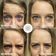 Here is an example of how botox and fillers can help you age this patient had 20 units of botox for forehead wrinkles frown lines lines between the brow solutioingenieria Choice Image