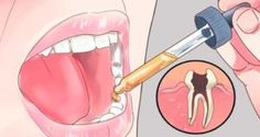 put-this-in-your-mouth-and-that-frustrating-toothache-will-disappear-in-a-few-seconds