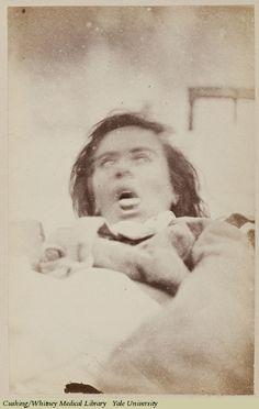 Hystéro-Épilepsie - Hallucinations Angoisse  Salpêtrière Hospital   Date: 1876  Is Part Of: Iconographie photographique de la Salpêtrière, (Service de M. Charcot), by Désiré-Magloire Bourneville and Paul Régnard, Volume 1 1876-187