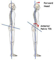 """A very nice article with stretches for tight hip flexors (which may contribute to poor posture, low back pain and """"belly pooch"""")"""