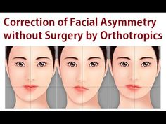 Correction of Facial Asymmetry without Oral Surgery Using Orthotropics Method by Dr Mike Mew - YouTube