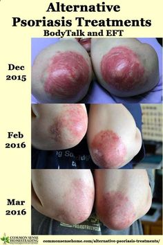 Psoriasis Revolution - Psoriasis Revolution - One of the most fundamental alternative psoriasis treatments I used was to change my state of mind using two primary techniques - EFT and BodyTalk. - REAL PEOPLE. REAL RESULTS 160,000  Psoriasis Free Customers - REAL PEOPLE. REAL RESULTS 160,000+ Psoriasis Free Customers