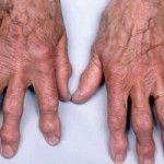 Artrose blijkt een voedselallergie! Artrose is botslijtage. De pijn wordt echter niet door deze slijtage veroorzaakt. Artrosepijn vindt zijn oorzaak in ontstekingen. Deze ontstekingen ontstaan op verschillende manieren. Een van die manieren is opvallend. Artrose blijkt namelijk in het merendeel van de gevallen te ontstaan door voedselallergie. . Voorbeelden van voedsel waar mensen allergisch voor zijn is suiker, witmeelproducten, fructosestroop, transvet en chocolade