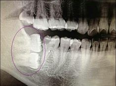 Ever see this dental phenomenon? Kanawha City Pediatric Dentistry, pediatric dentist in Charleston, WV @ www.pediatricdentistcharleston.com