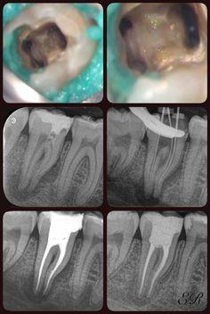 endodontics 1