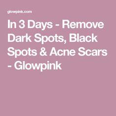 In 3 Days - Remove Dark Spots, Black Spots & Acne Scars - Glowpink