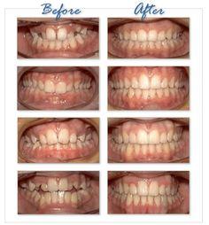 Orthodontics, Porcelain Veneers and Crowns : North Ryde Dentists Veneers Teeth, Dental Veneers, Dental Braces, Teeth Braces, Ceramic Braces Cost, Braces Before And After, Teeth Straightening, Porcelain Veneers, Beauty