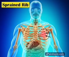 Sprained Ribs are also known as a costovertebral joint sprain. Osteopaths see a… Essential Oil For Bruising, Rib Pain, Self Treatment, Sprain, Heart Health, Physical Therapy, Acupuncture