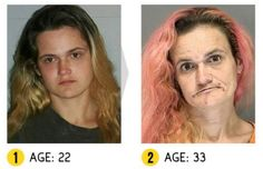 In pictures: 'More than Meth'- the shocking physical effects of drug abuse Faces Of Meth, Scary Faces, Effects Of Drug Abuse, Physique, Face Change, The Ugly Truth, New Face, School, Addiction