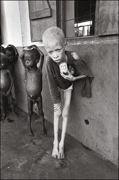 Starving child in Biafra, Nigeria during the Nigerian Civil War, 1969 by Don McCullin.